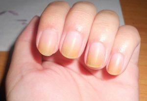 sağlıklı tırnak rengi