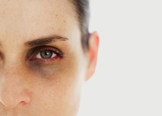 göz alti morluklari tedavisi