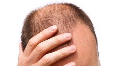 Erkeklerde Saç Dökülmesine Ne İyi Gelir? Nasıl Önlenir?