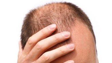 erkeklerde saç dökülmesine ne iyi gelir? nasıl önlenir?