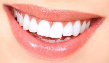 Dişleri Evde Nasıl Beyazlatırız?