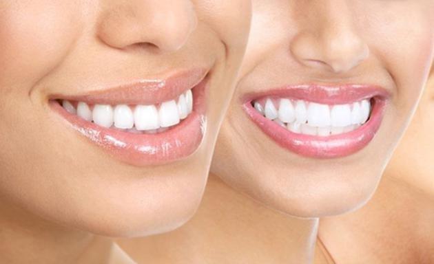dişleri beyazlatma yöntemi