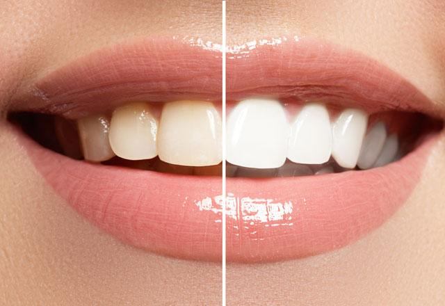 zerdeçal ile diş beyazlatma