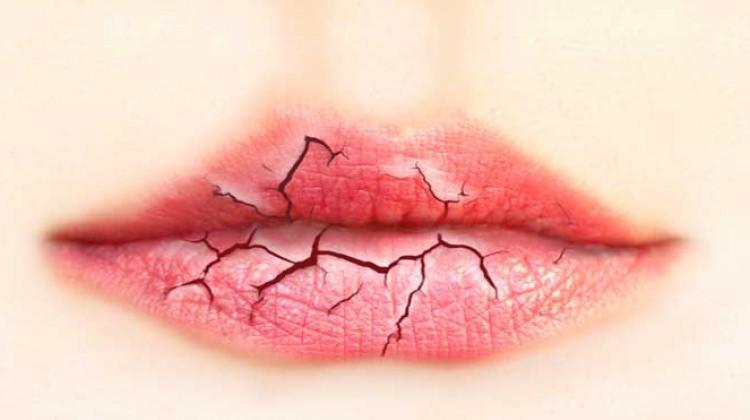 dudak catlamasi icin neler yapilir