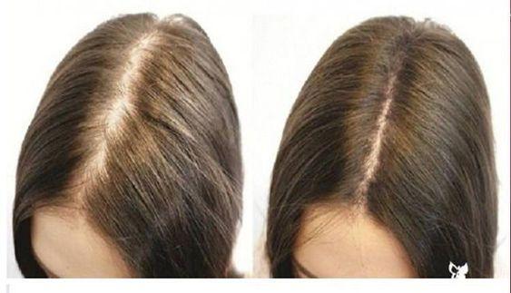 saç dökülmesinde bitkisel tedavi yöntemleri
