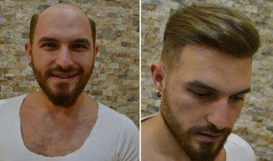 protez saçlar hakkında bilgi