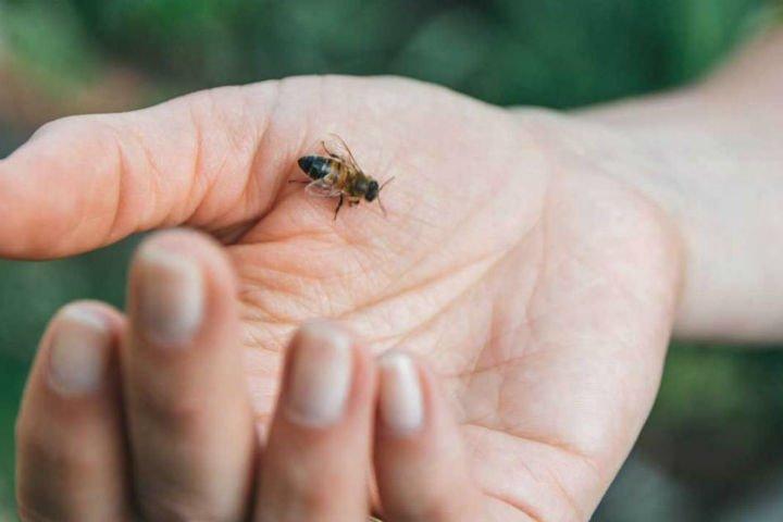 arı sokması tedavisi