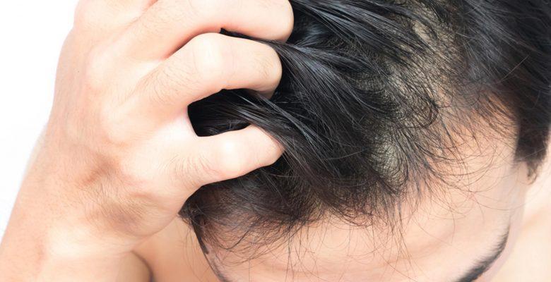 Saç Diplerinde Oluşan Kaşıntılara Doğal Çözümler
