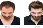 Organik Saç Ekimi Nedir? Nasıl Yapılır?