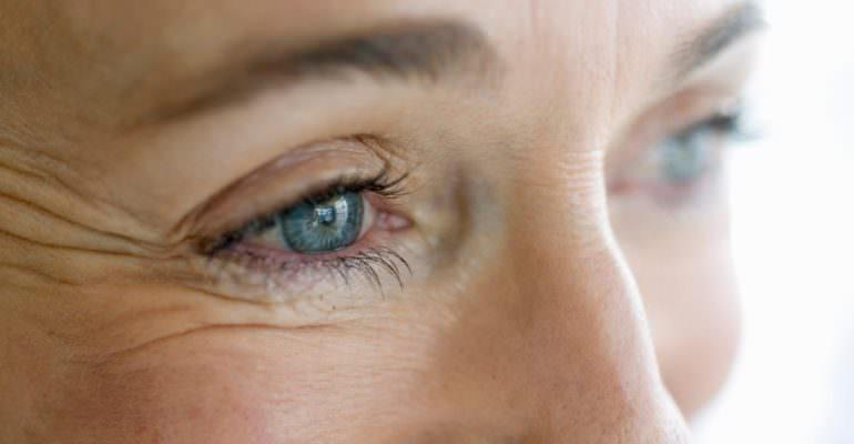 Göz Çevresi Kırışıklıkları Ne İyi Gelir? Nasıl Giderilir?
