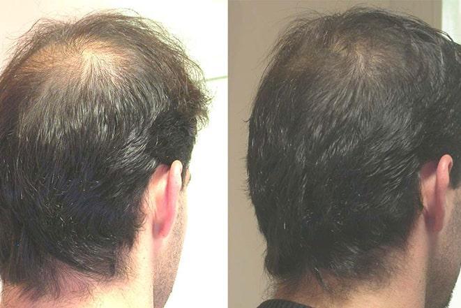 saç mezoterapisi fiyatları 2021