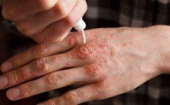 Sedef Hastalığı Nedir? Sedef Hastalığı Çeşitleri