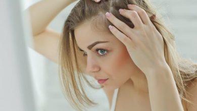 seyrek saçları gürleştirme yöntemleri