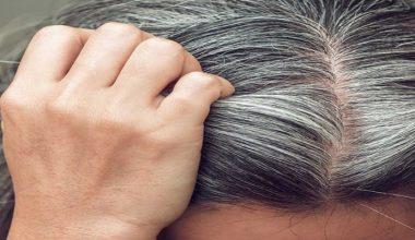 Saç Beyazlaması Neden Olur? Ne İyi Gelir?